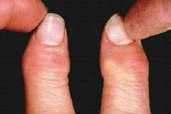 Osteoartrite das mãos