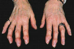 Osteoartrite dos pés