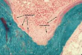 osteoporose 1