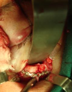 Fratura zigomática corrigida cirurgicamente