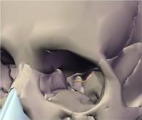 Cavidade ocular com detalhe para o assoalho