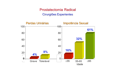 Prostatectomia Radical