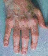 Artrite reumatoide artigos