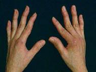 tratamiento casero para disminuir el acido urico la cebolla para el acido urico alimentos permitidos pacientes con gota