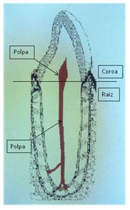Divisões coroa e raiz e localização da polpa coronária e radicular.
