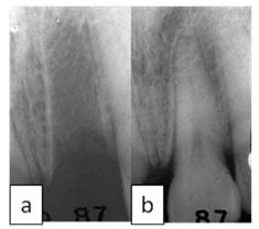 Alvéolo (Local do dente no osso) sem o dente
