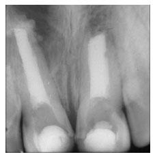 Tratamento de canal de dentes jovens.