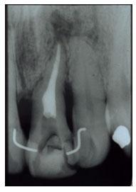 Tratamento de canal de dente adulto.